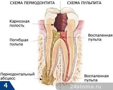 Схема развития периодонтита и пульпита