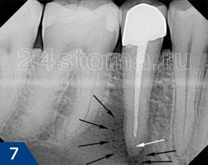 Периодонтальный абсцесс (ограничен черными стрелками) в области верхушки корня нижнего зуба