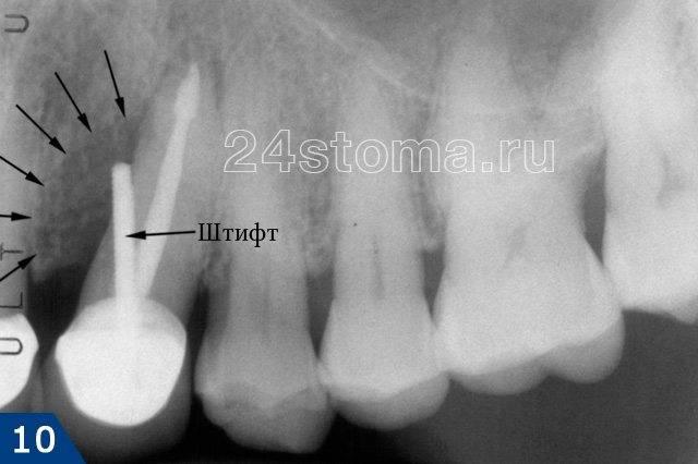 Перфорация корня зуба, допущенная при установке штифта в корневом канале