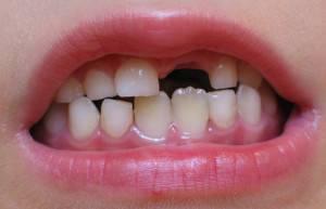 Шестой зуб у ребенка меняется или нет