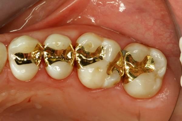протезирование 1 зуба без обточки соседних зубов