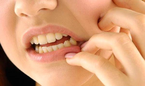 Киста над зубом