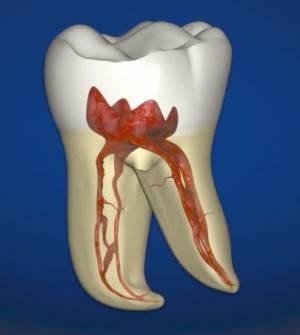 Воспаление зубного нерва симптомы и лечение в домашних условиях — Болезни полости рта