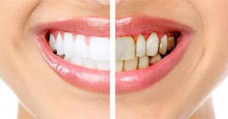 заболевание зубов и десен