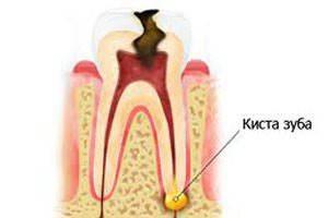 Киста зуба, симптомы кисты зуба, киста в десне зуба