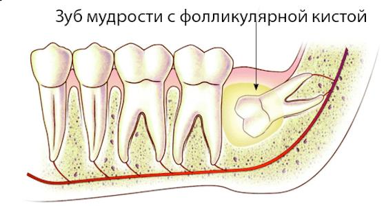 Фолликулярная киста зуба