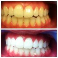 После протезирования зубов воспаляются десна
