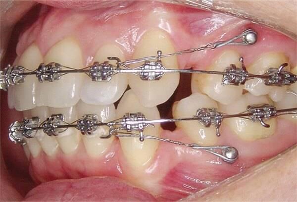 имплантацией зубов в ортодонтии и стоматологии