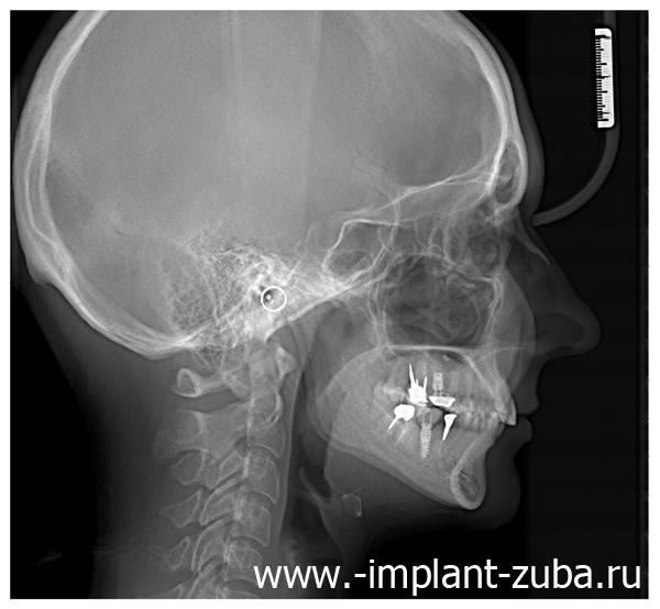 рентген после имплантации зуба