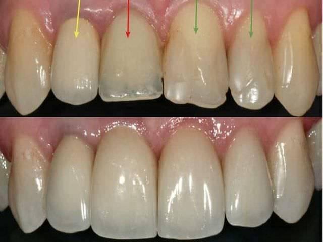 Признаки щелей на зубах