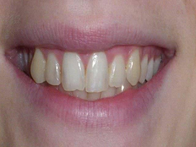 Микротрещины на эубной эмали