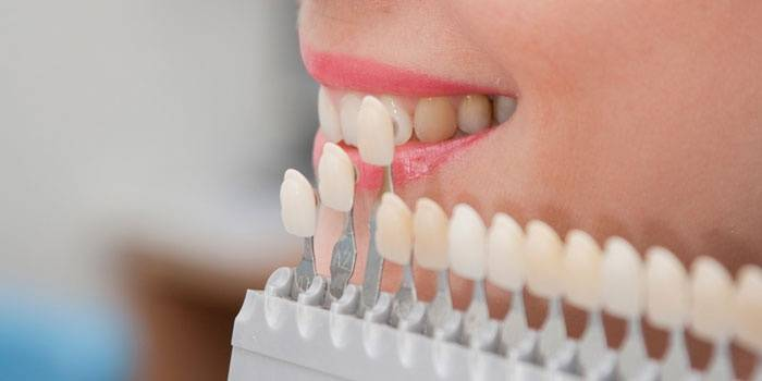 Подбор оттенка эмали зубов