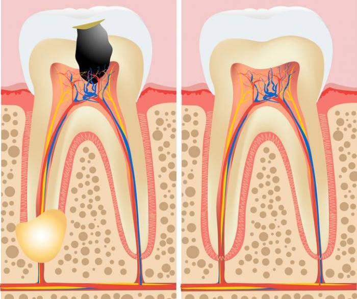 Больной гранулемой и здоровый зуб