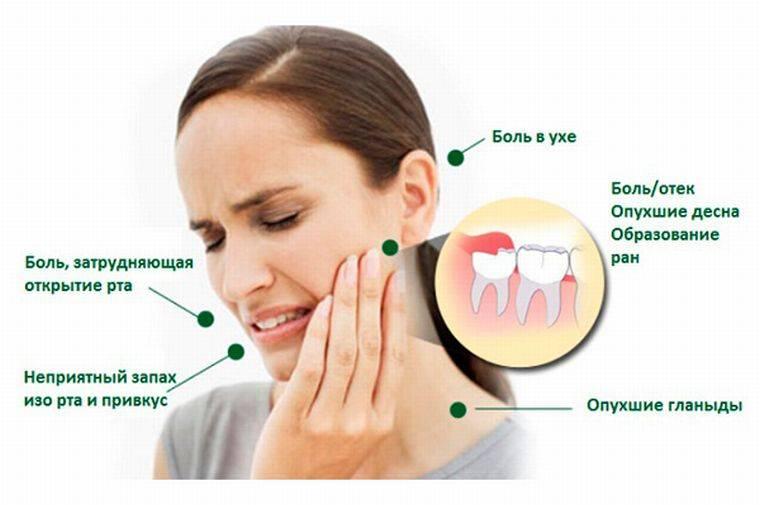 куда отдает боль в зубах