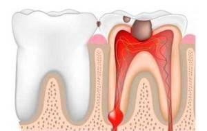 Что сделать чтобы флюс прорвался быстрее в домашних условиях — Болезни полости рта