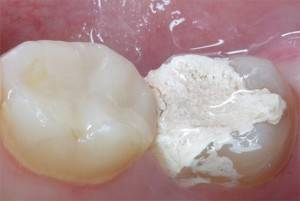 стоматологический мышьяк