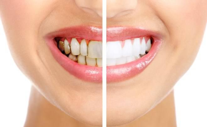 Проблема зубного камня, как избавиться в домашних условиях и сэкономить