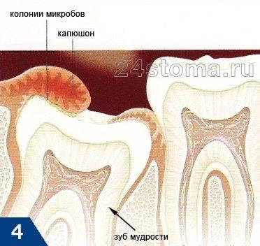 Схема развития перикоронита (воспаления десны) у зуба мудрости