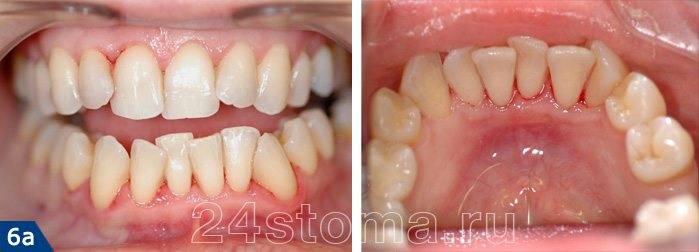 Скученность передних зубов нижней челюсти, вызванная прорезыванием зубов мудрости
