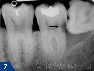 Кариес 7-го зуба (показан стрелкой), вызванный зубом мудрости