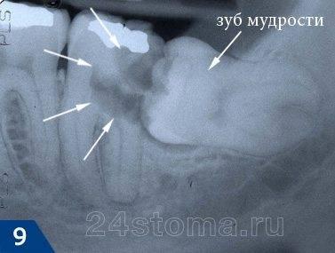 Кариес 7-го зуба (очаг ограничен белыми стрелками), осложненный периодонтитом