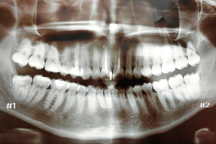 зуб мудрости, рентген, удаление зуба мудрости, иссечение капюшона над зубом мудрости