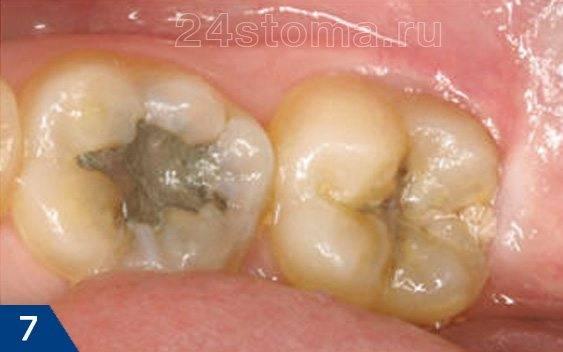 Вид зуба мудрости через 10 дней после иссечения капюшона