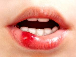 После прикуса губы появилась язва