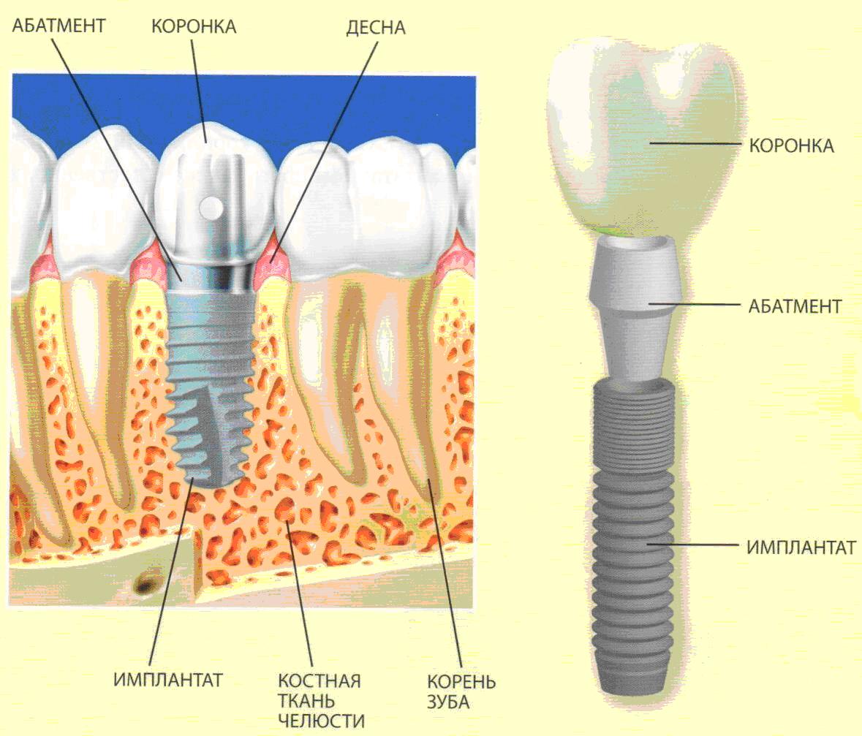 в чем заключается имплантация зубов