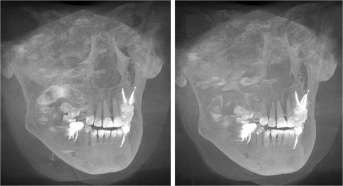 3D снимок челюсти