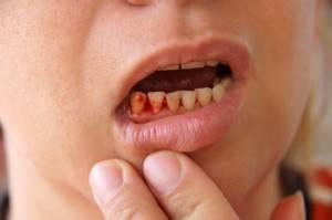 Кровоточит десна в одном месте между зубами