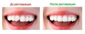 Можно ли поставить коронку на нарощенный зуб