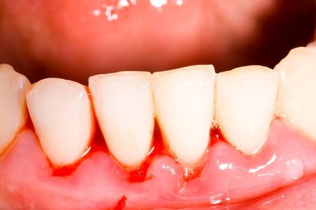 Растет зуб мудрости болит — Зубы