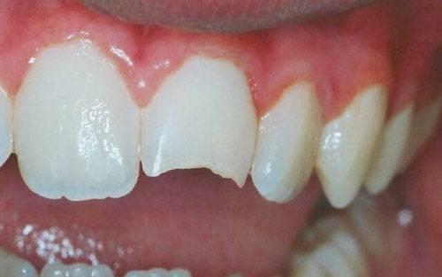 otkololsya zub chto delat 3 Откололся зуб: что делать?