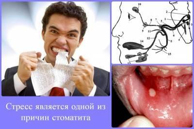 Стрессы также приводят к нарушениям слизистой рта