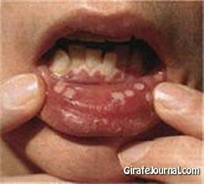 лечить стоматит во рту фото