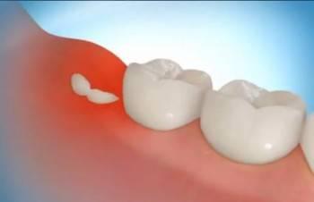 Симптомы прорезывания зубов мудрости