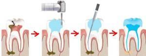 Как отличить кариес от пульпита — Зубы