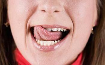 Следы зубов на языке