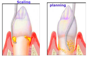 scaling-planing-300x200.png