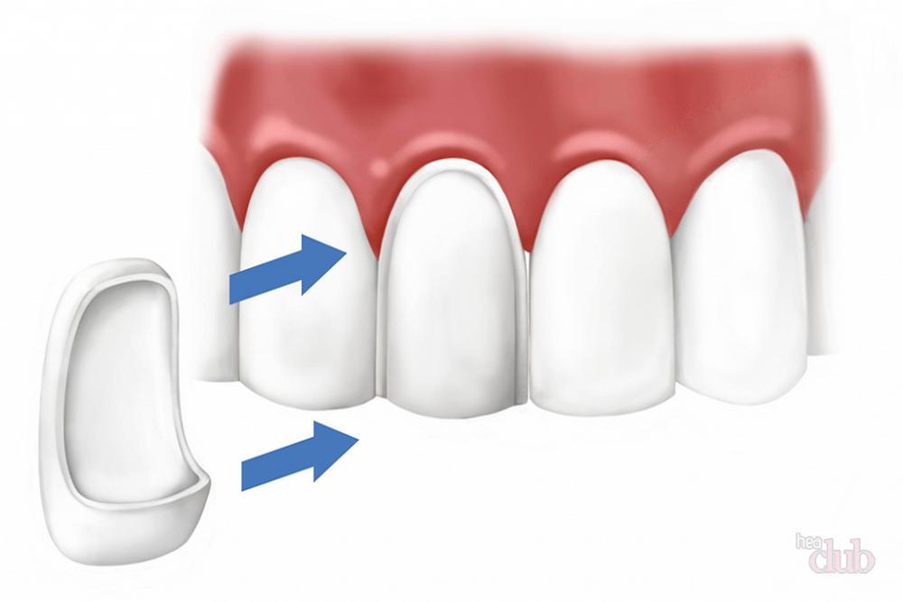 реставрации фронтальных депульпированных зубов