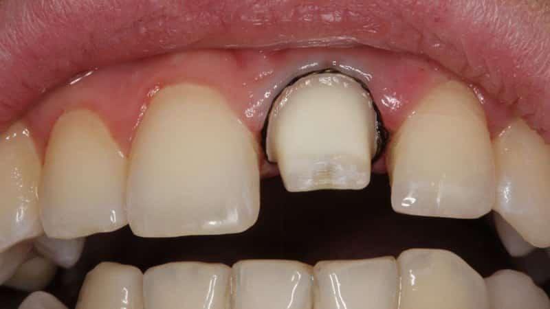 Обточка зубов под коронки