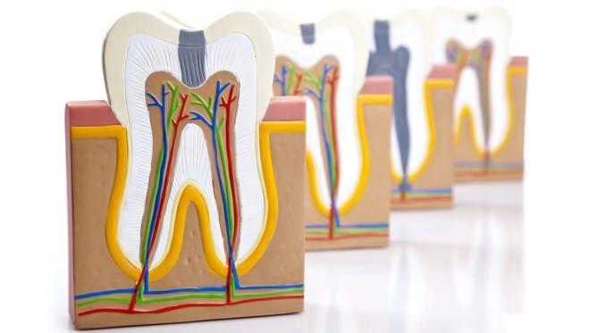 Почему болят зубы после удаления нерва