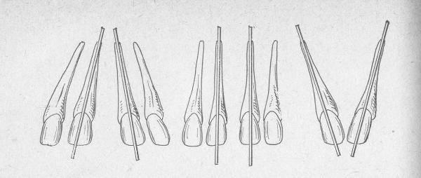 Сколько стоит убрать щель между передними зубами