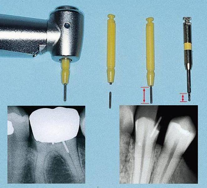 реставрация зубов со штифтом