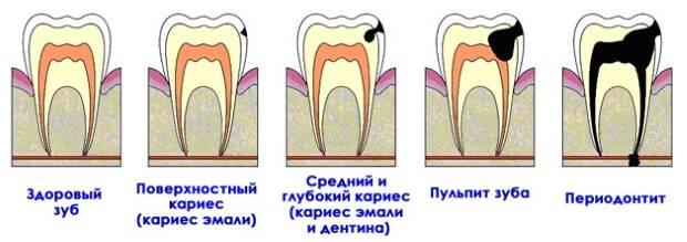 Пульпит и кариес зуба