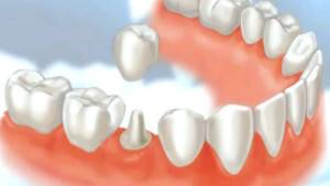 Флюс под коронкой что делать — Зубы