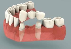 Болят зубы под коронкой