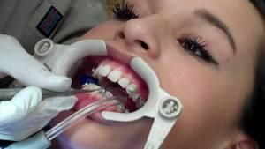 Почему брекеты не ставят на последние зубы — Зубы