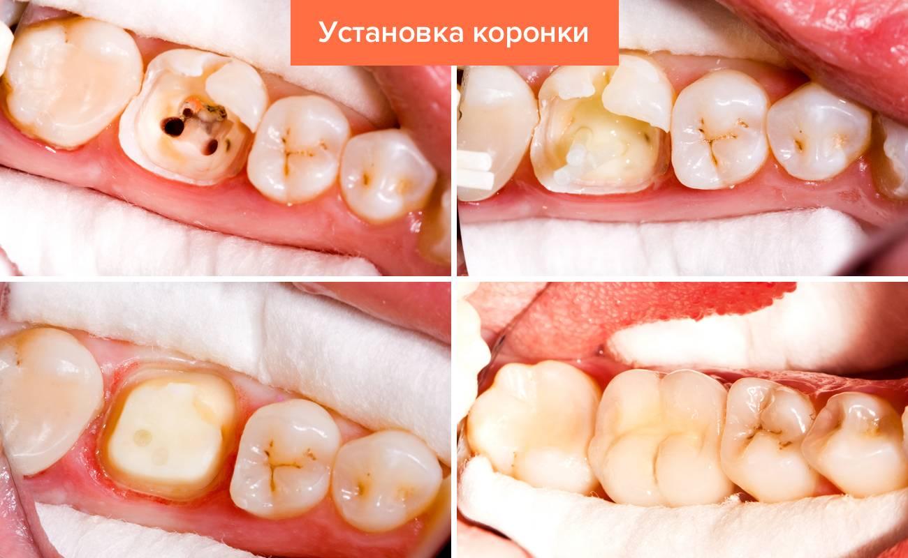 Фото этапов установки зубной коронки
